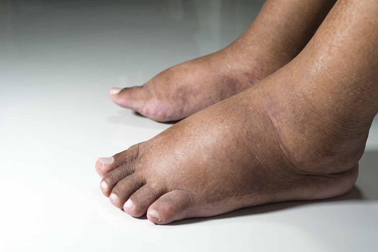 man with swollen feet